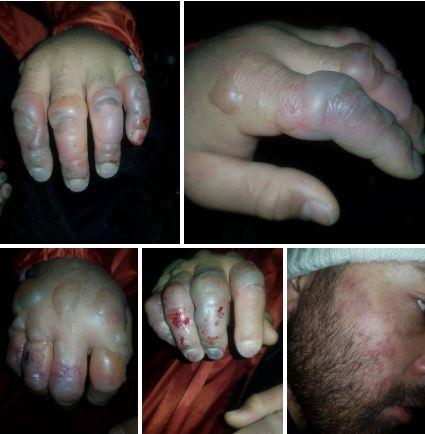 سرمازدگی 6 کوهنورد گرفتار در ریزش بهمن ارتفاعات تهران