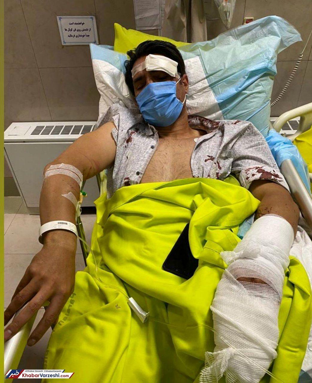 عکس| جراحت شدید کاپیتان استقلال پس از تصادف
